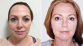 dermal Fillers Torquay, Dermal Fillers Devon